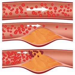 Le cholestérol et les conseils pour réduire son taux